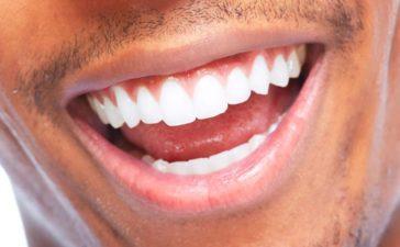 Conseguir una sonrisa perfecta en pocos pasos