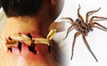 ¿Cuáles son las arañas más venenosas del mundo?