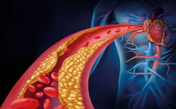 La Ateroesclerosis: Sus síntomas y sus causas principales