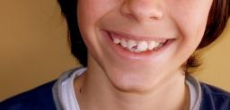 ¿Cuál es el tratamiento de un diente agrietado?